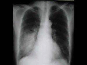 Что такое пневмония легких