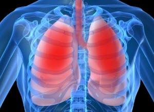 Комплекс упражнений при пневмонии